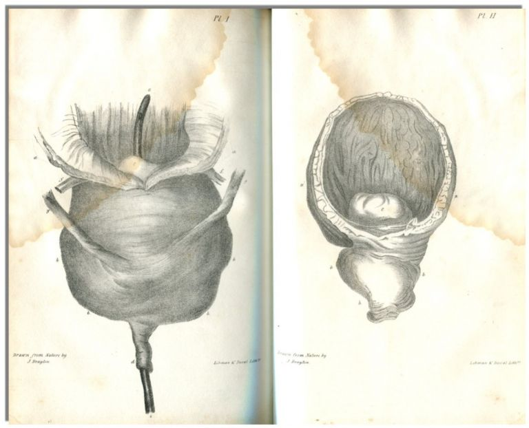 PRACTICAL OBSERVATIONS ON STRANGULATED HERNIA: And Some of the Diseases of the Urinary Organs.