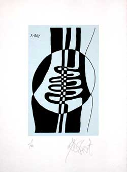 """X-RAY"": Limited Edition, Signed Silkscreen Print. Kurt Vonnegut"